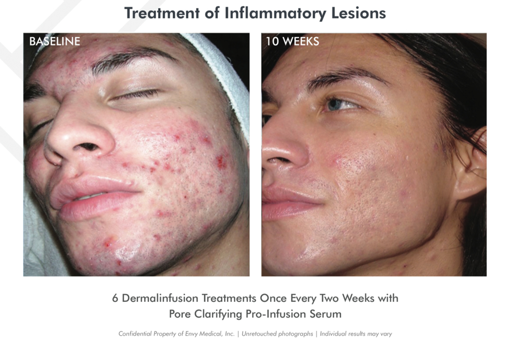 Photos of before and after young adult with inflammatory lesions. After 10 weeks the skin is almost clear