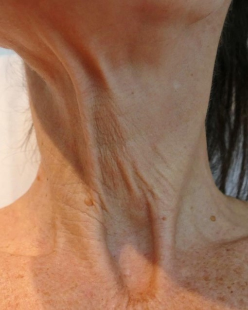 Photo of a woman's sagging skin on her neck before treatment at Nirvana Medical Spa