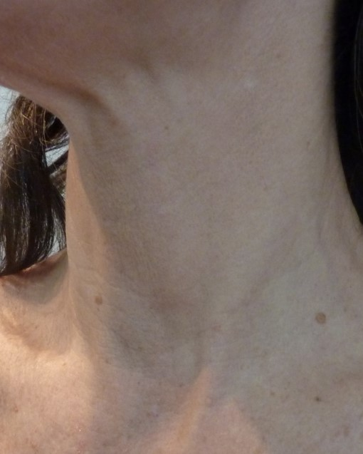 Photo of a woman's sagging skin on her neck after treatment at Nirvana Medical Spa