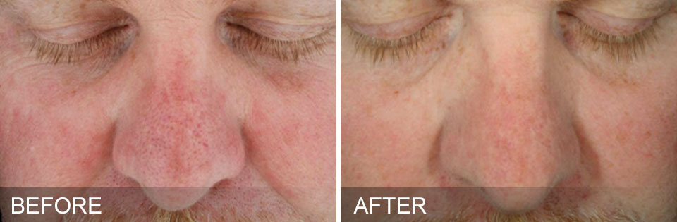 Red spots and enlarge pores are a result of high exposure to sunlight. At Nirvana we can reverse the damage.