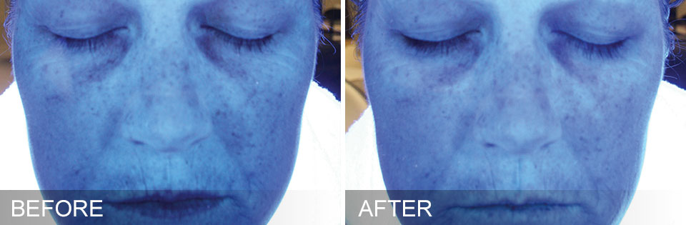 Before and After Images of skin hydration