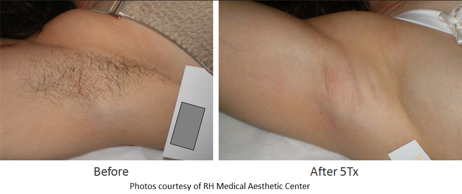 Before & After photo of an armpit using laser hair removal 5Tx