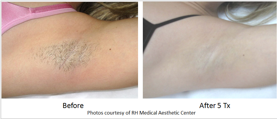 Before & After photo of a woman's armpit using Laser Hair Removal 5 Tx