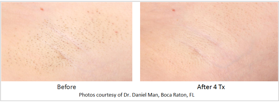 Close up before and after photo of an armpit that used laser hair removal.